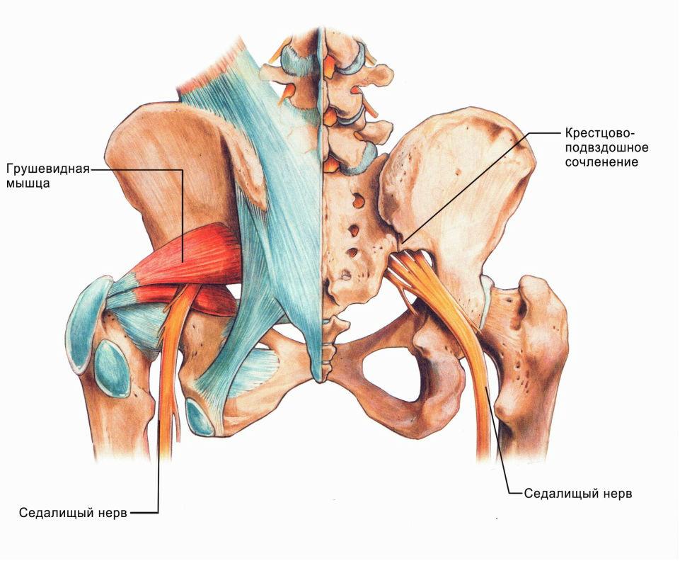 защемление седалищного нерва снятие боли
